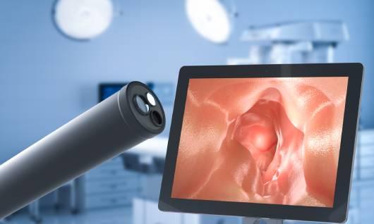 equipos de endoscopia